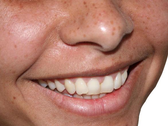 blog-teeth